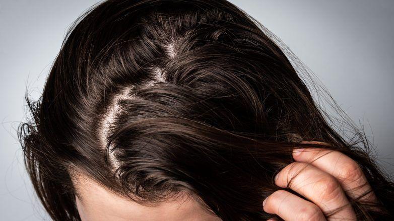 Femme au cuir chevelu gras et huileux qui touche ses cheveux