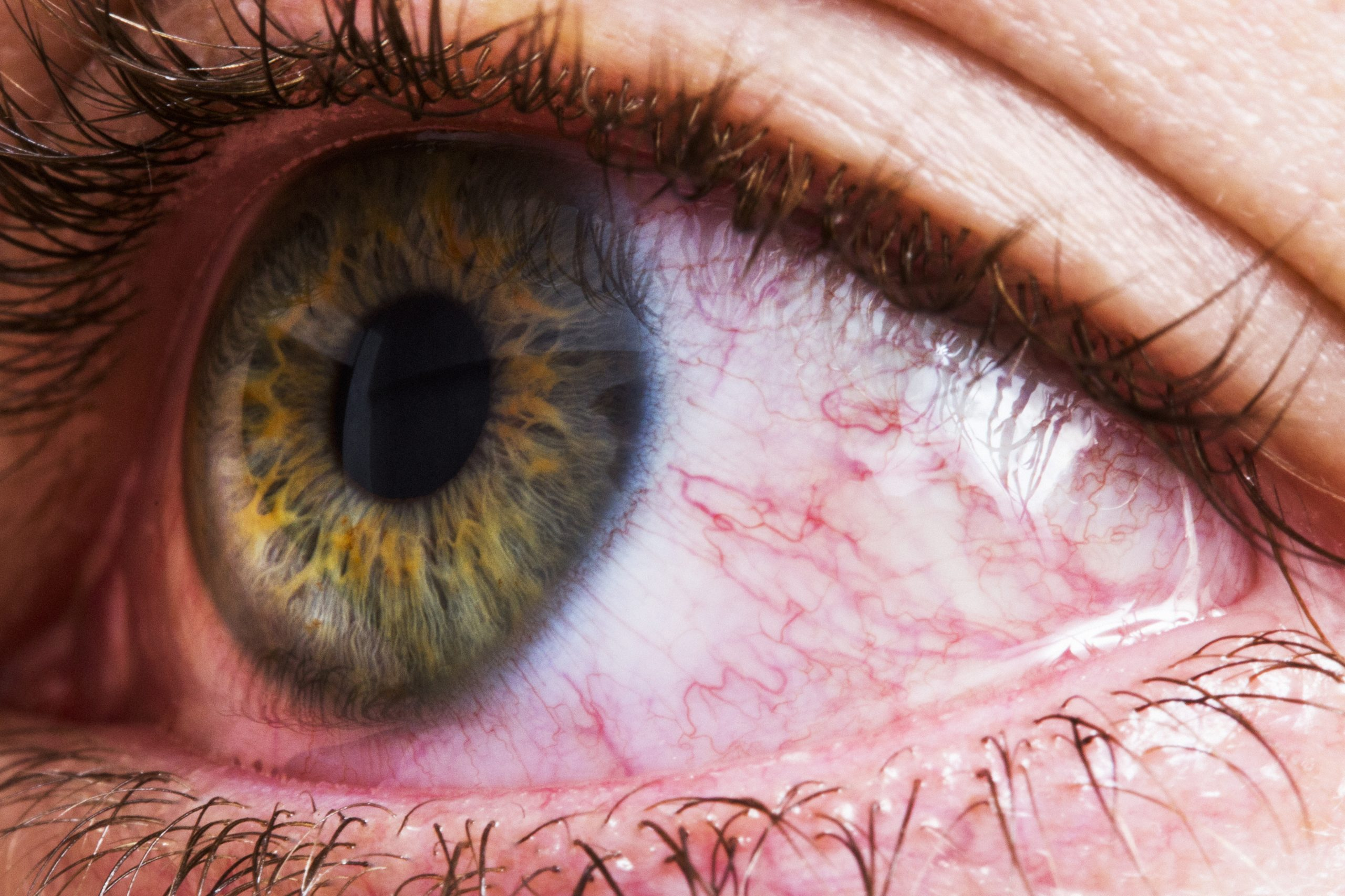 sore eyes, hayfever cure
