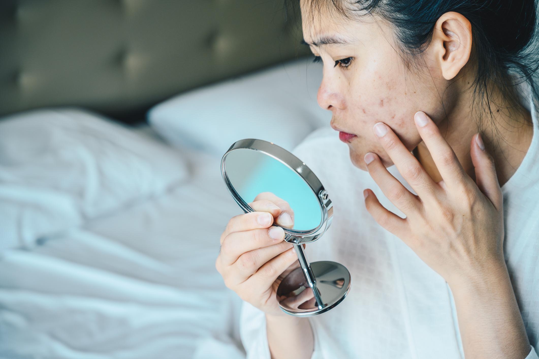 Femme regardant ses cicatrices d'acné dans un miroir.