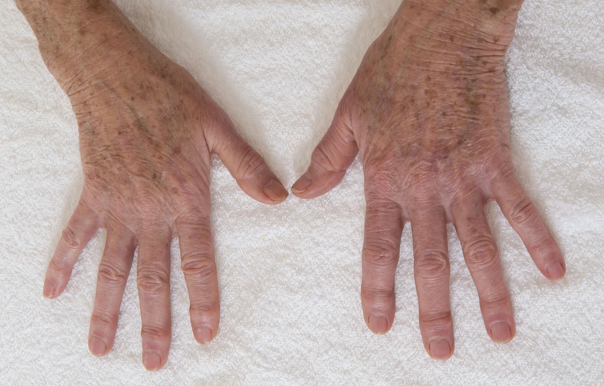 Deux mains avec des taches de foie étalées sur une serviette blanche.