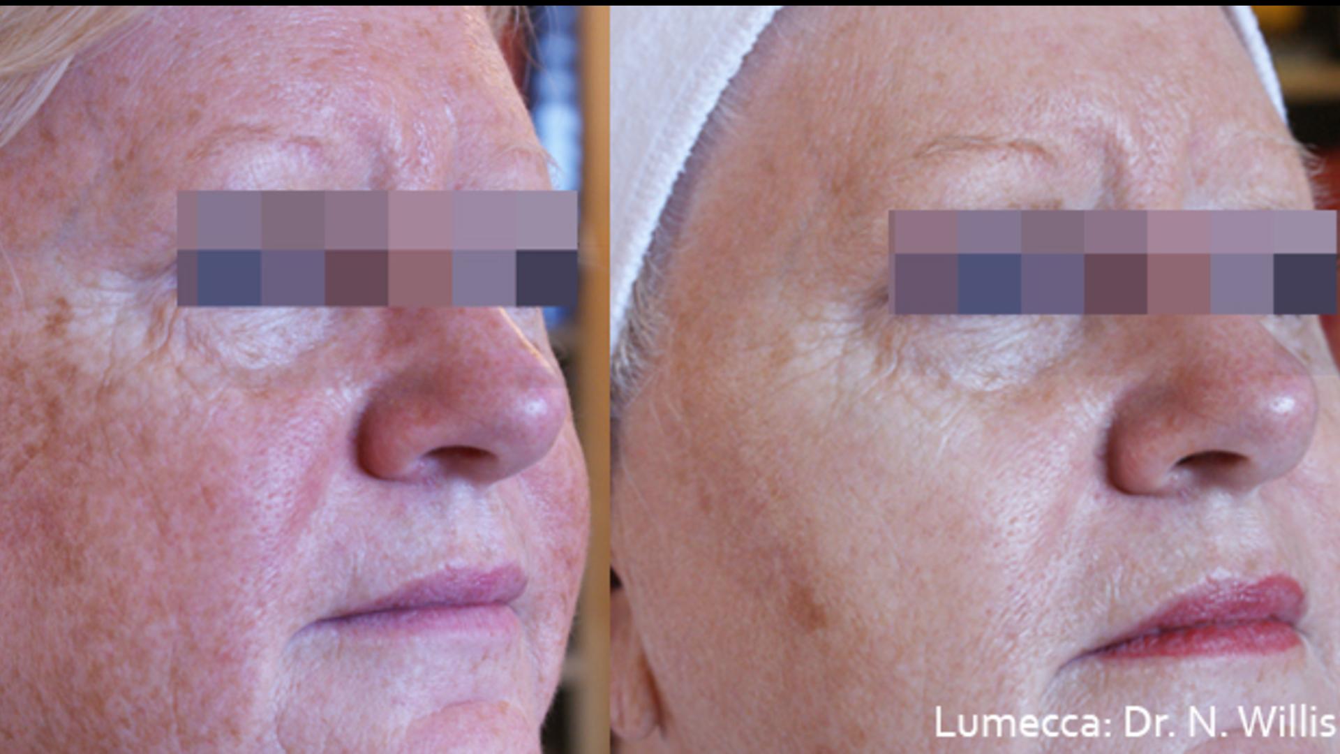 Traitement Lumecca avant et après pour se débarrasser des taches brunes.